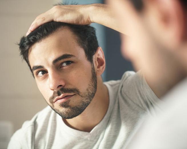 man inspecting hair for loss